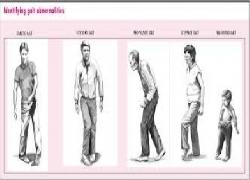 Rối loạn dáng đi và đông cứng trong bệnh Parkinson: Các thông tin người bệnh cần biết