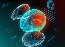 Loạn trương lực: các thông tin người bệnh cần biết