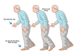 10 điều nên làm ở bệnh nhân Parkinson